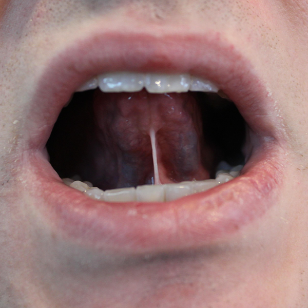 Tongue Before Frenuloplasty